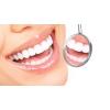 Отбеливание зубов, метод ZOOM